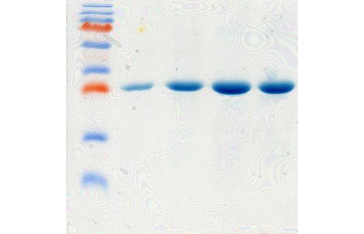 Создали штамм суперпродуцент с уровнем экспрессии рекомбинантного белка >50%. Разработали технологию выделения и очистки рекомбинантного белка. Степень чистоты составила >98%.  - пример 1